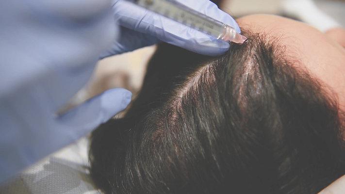 PRP (Hair) Treatment