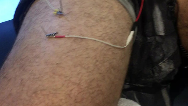 Electrotherapuetic dry needling of the Infraspinatus