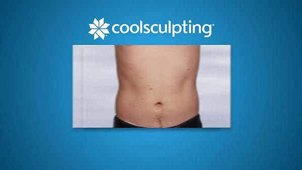Coolsculpting hombres