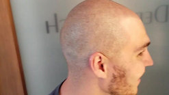Scalp Micropigmentation in Scottsdale, Arizona (1)