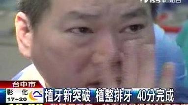 2010年TVBS新聞-34分鐘完致性全口植牙立即裝戴永久性假牙
