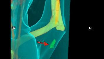 斷層掃描應用於腫瘤之診斷