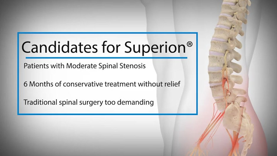 Superion-Patient-Education-v05_email