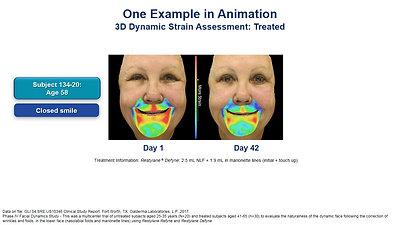 Smile Animation