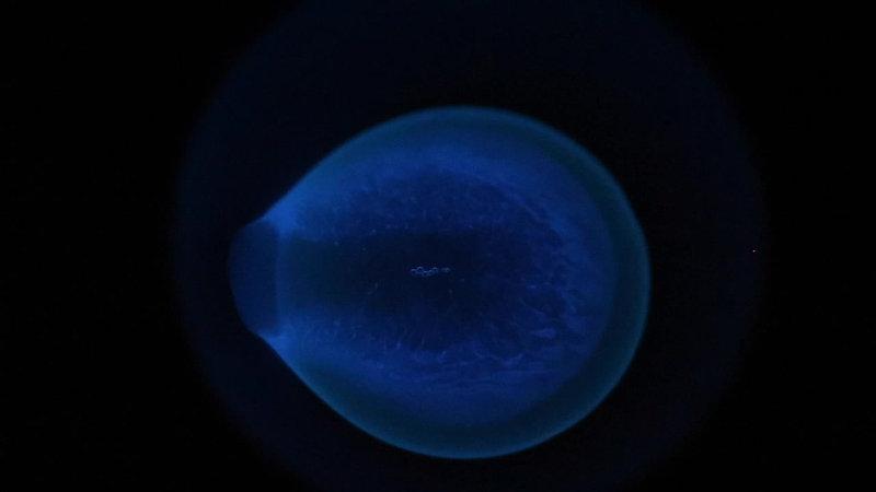 FBS-Luminol Clip