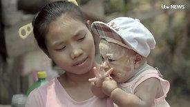 New 'super malaria bug' threatens global emergency | ITV News