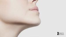Aumento de mentón, armoniza tu rostro