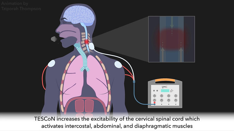 Cervical Stimulation for Improved Breathing