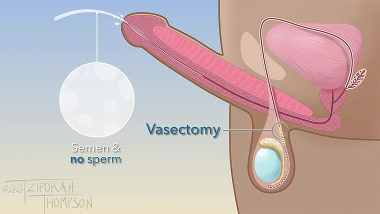 Vasectomy Procedure for Patients - Sample