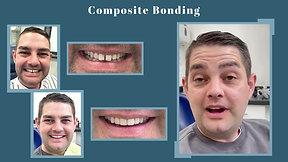 GM Dental Composite Bonding