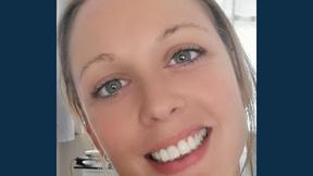 Smile Makeover Winner