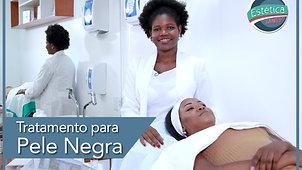 Tratamento para Pele Negra