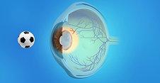 Cataracts Animation: Secondary Cataract
