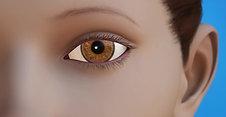 Oculoplastics Animation: Entropio Ectropion Repair