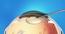Cataracts Animation: Phaco Surgery