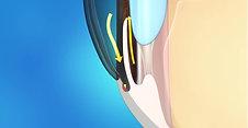 Glaucoma Animation: Glaucoma
