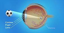 Pediatrics Animation: Eye Works