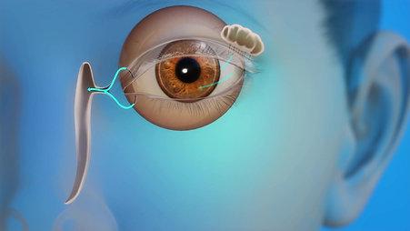 Pediatrics Animation: Blocked Tear Duct