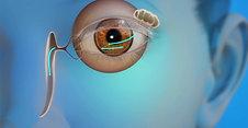 Oculoplastics Animation: Blocked Tear Duct
