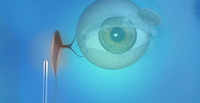 Oculoplastics Animation: Endoscopic DCR