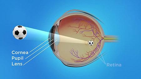 Refractive Animation: Eye Works