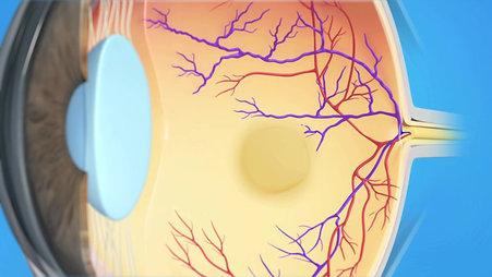 Retina Animation: BRVO