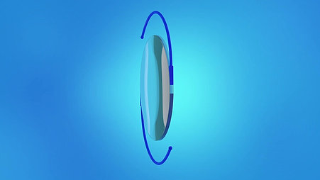Cataracts Animation: Toric Lens
