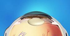 Pediatrics Animation: Cataract Surgery