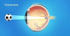 Refractive Animation: Hyperopia