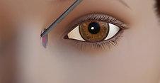 Oculoplastics Animation: External DCR