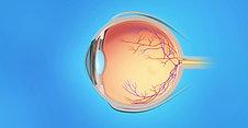 Retina Animation: CRVO