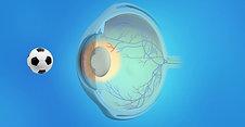 Pediatrics Animation: Cataract