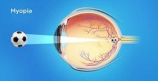 Refractive Animation: Myopia