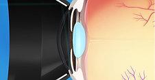 Glaucoma Animation: Laser Trabeculoplasty