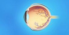 Retina Animation: BRVO Injections