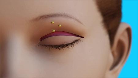 Oculoplastics Animation: Blepharoplasty