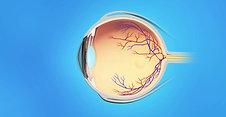 Retina Animation: CME Injection