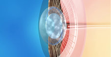 Cataracts Animation: Secondary Cataract YAG