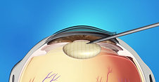 Cataracts Animation: Laser Surgery