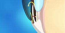 Glaucoma Animation: Laser Iridotomy