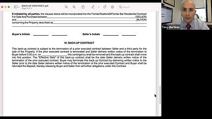 Tony's Topics: Back-Up Contract Basics