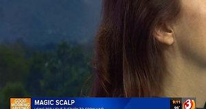 Magic Scalp on TV
