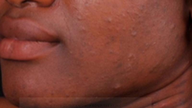 Before you treat dark spots...