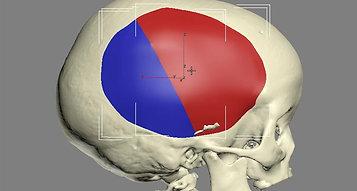 Prótese Craniana Infantil