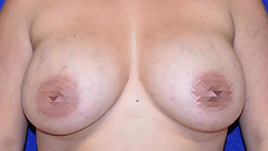Breast Lift & Augmentation *GRAPHIC images