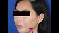Cheek Reduction - Buccal Fat Removal *GRAPHIC images!
