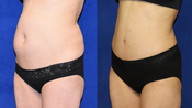 Tummy Tuck & Liposuction *GRAPHIC Images
