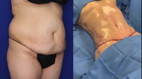 Tummy Tuck / Liposuction