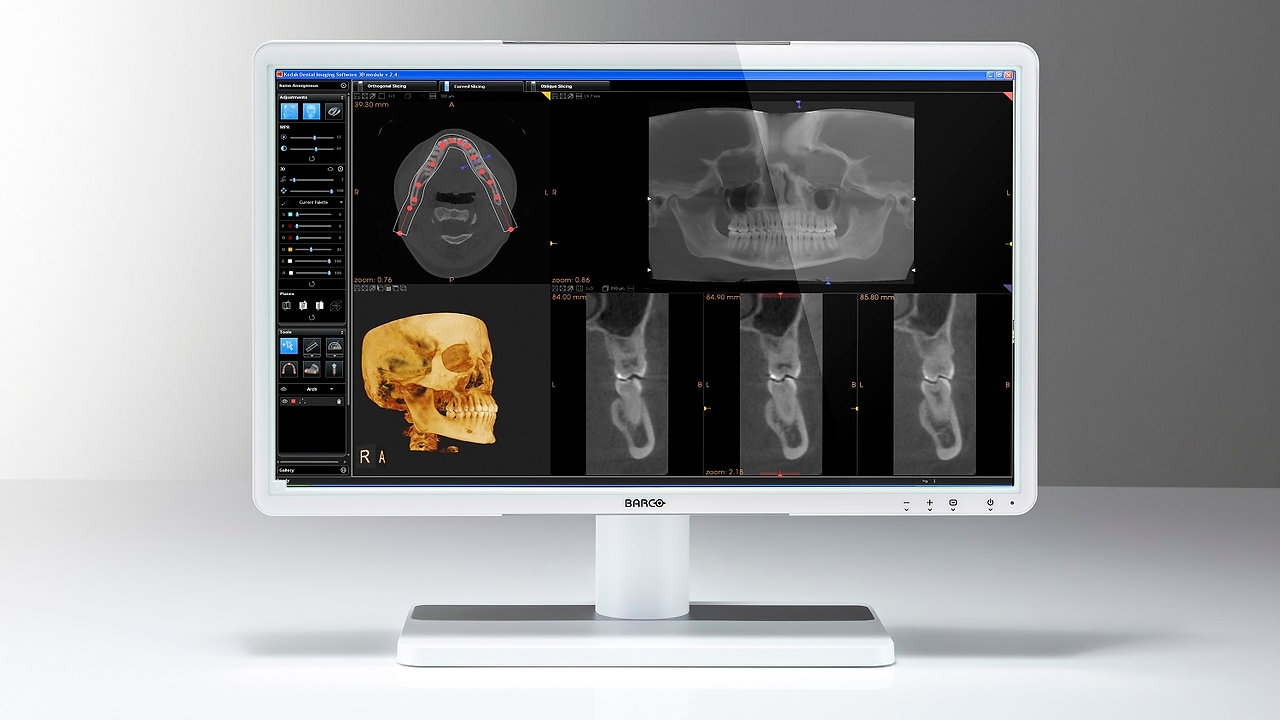 Pantomograf lub Tomograf CBCT + monitor Barco 50% OFF