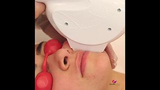 Laser Hair Reduction | Upper Lip Chin